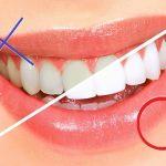 気になる美容のうわさ|歯について4項目のウソ・ホント