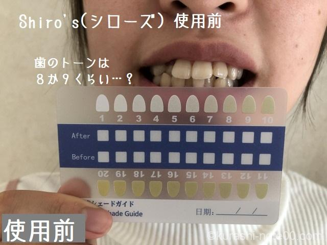歯のトーンのチェック
